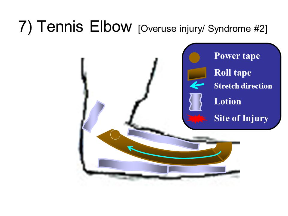 7) Tennis Elbow [Overuse injury/ Syndrome #2]